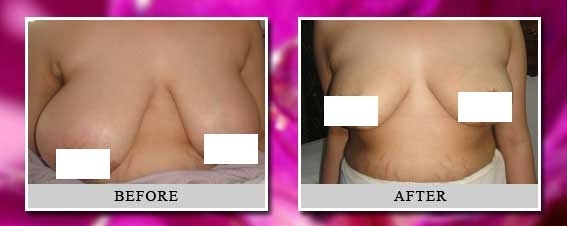 Breast reduction delhi