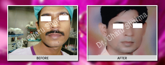 Face Correction surgery delhi