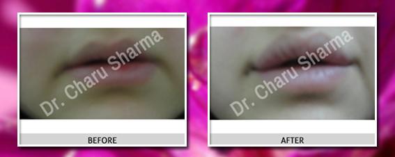 dermal fillers surgery in delhi