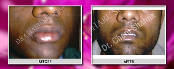 lip reduction surgery before and after