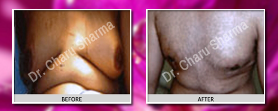 male breast surgery before and after