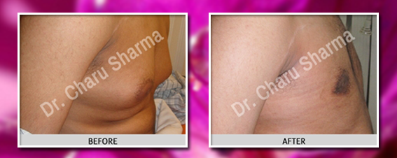 male breast reduction delhi