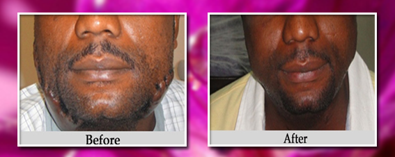 Smallpox Treatment Before And After