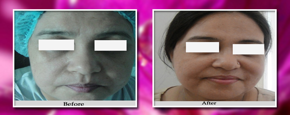 face lift surgery before and after