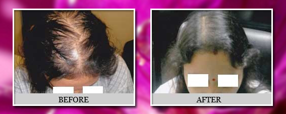 hair transplantation before and after