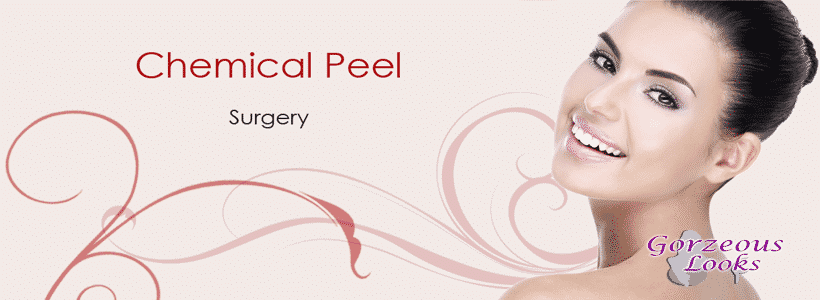 chemical peel surgery