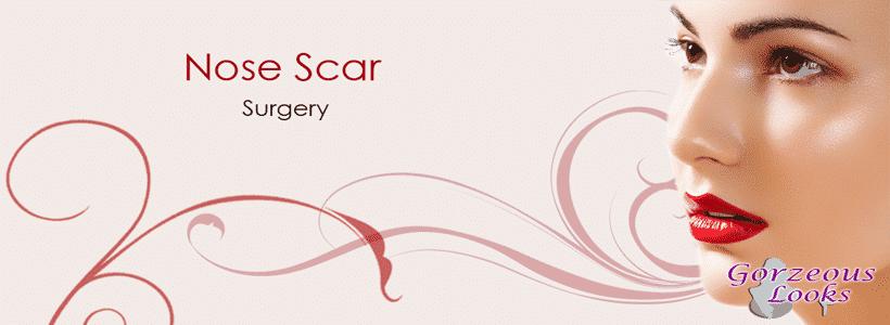 Nose Scar Surgery