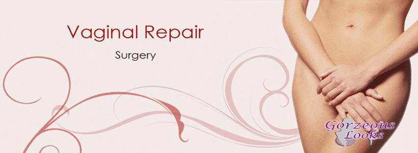 Vaginal Repair