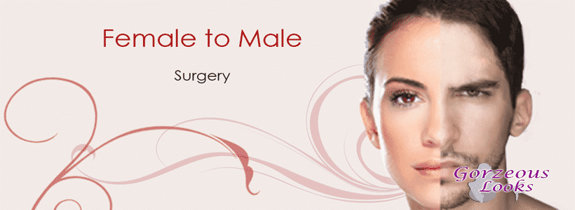 Female to Male Gender Reassignment Surgery