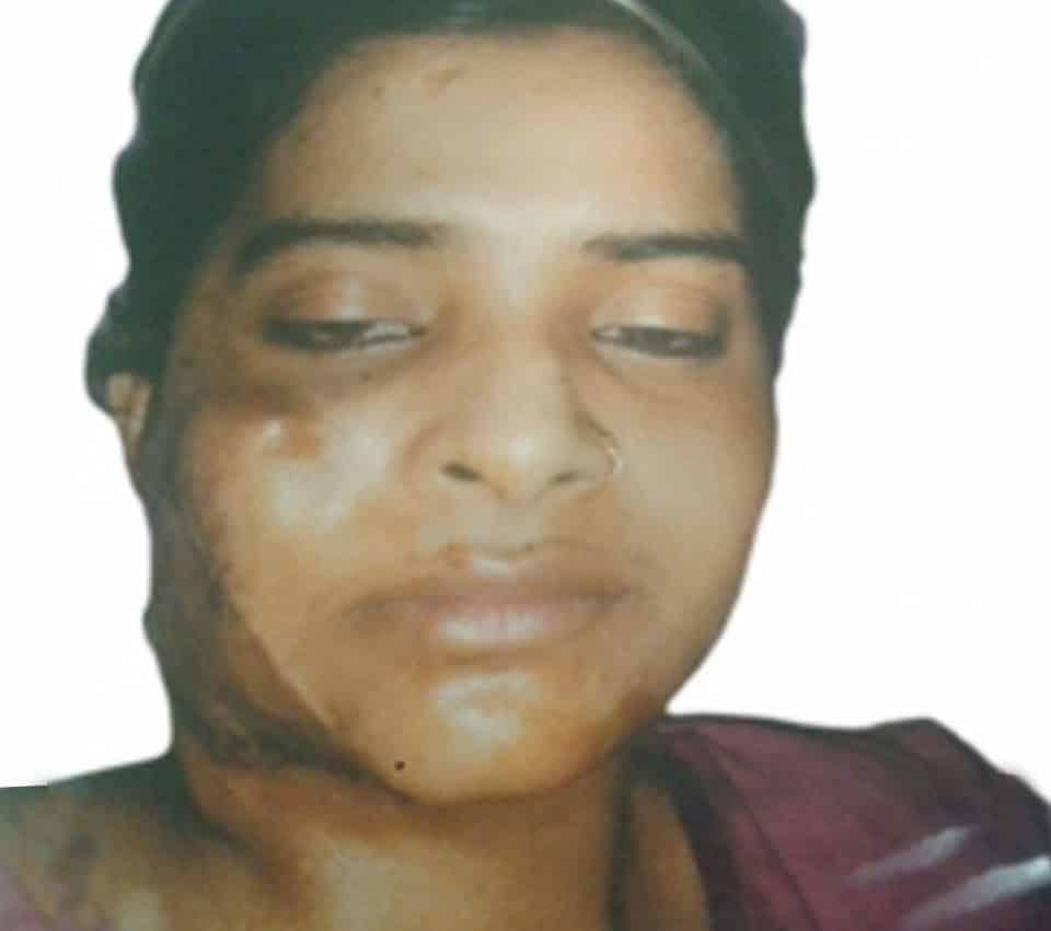Burn Surgery Delhi