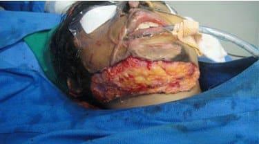Post Burn Neck Surgery