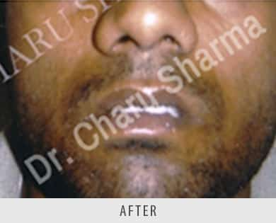 Lip Correction Surgery
