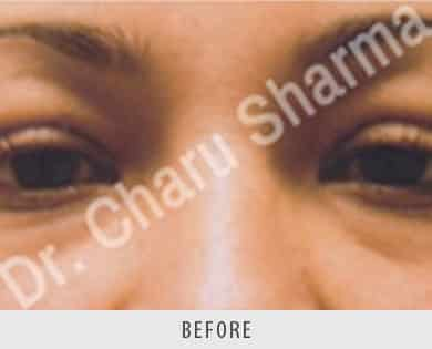 Blepharoplasty Treatment Delhi
