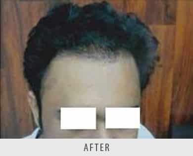 Hair Transplantation Surgeon Delhi
