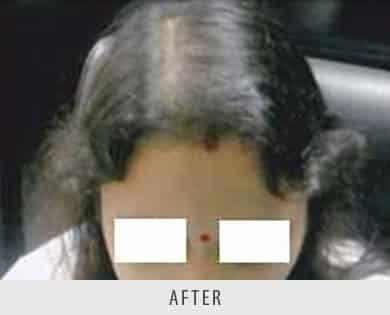 Hair Restoration Surgery Delhi