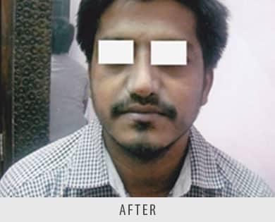 Rhinoplasty Correction Surgery