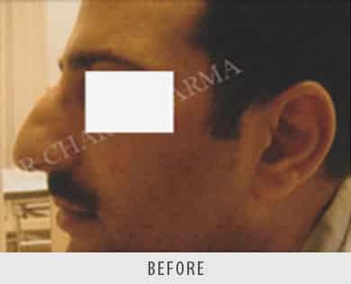 Nose Correction Surgery