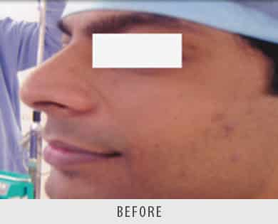 Nose Reshaping Surgery Delhi