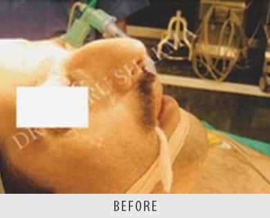 Rhinoplasty Reshaping Surgery