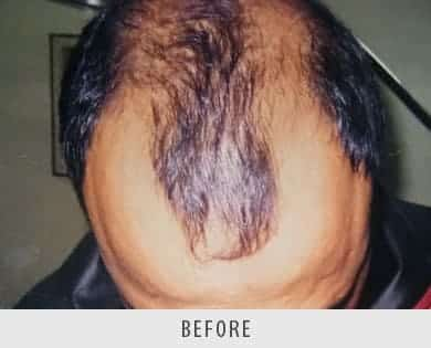 Hair Transplant surgery Delhi