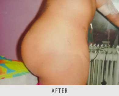Butt Enlargement