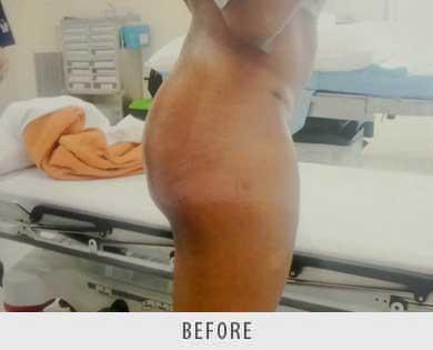 Butt Augmentation Surgery
